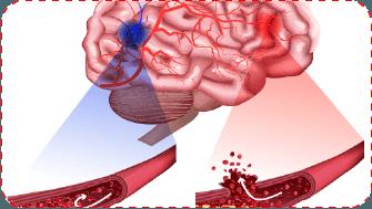 Đột quỵ tai biến suy tim và thông đỏ