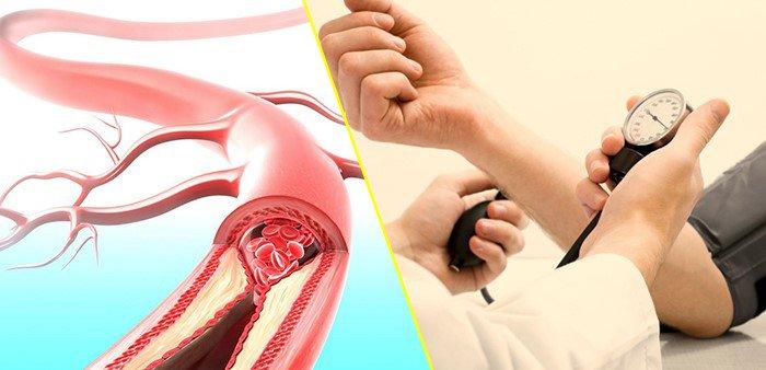 Người huyết áp thấp - huyết áp cao nên uống gì?